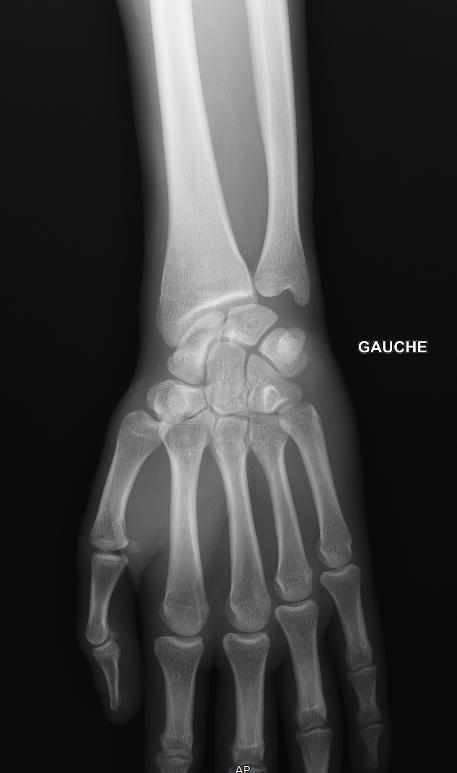 Radiographie La Plateforme Des Radiologues